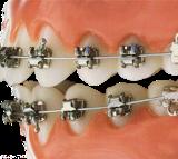 brackets-autoligante-metalico