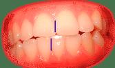 Líneas medias dentales