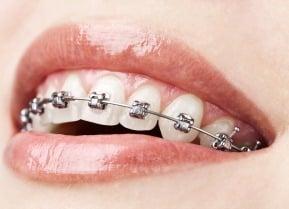 ventaja de la ortodoncia