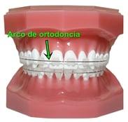 arco de ortodoncia