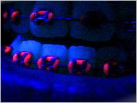 brackets ligas fosforescentes