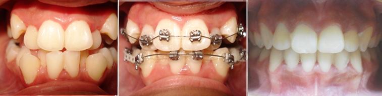 Tratamiento de ortodoncia con extracciones de primeros premolares